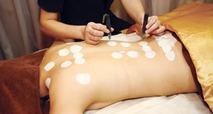 An individual getting moxibustion therapy